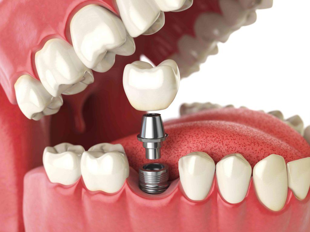 ¿Sabes que es un implante dental?